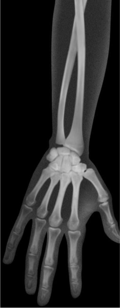 Human X-Rays (18pcs)-0